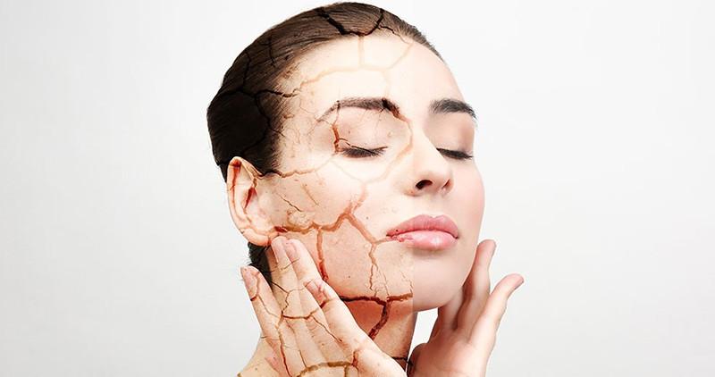 SUVA KOŽA: Šta se to dešava sa kožom pa kažemo moja koža je suva?